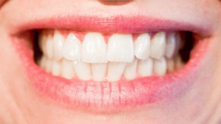 Domácí bělení zubů: Zapomeňte na citron a sodu
