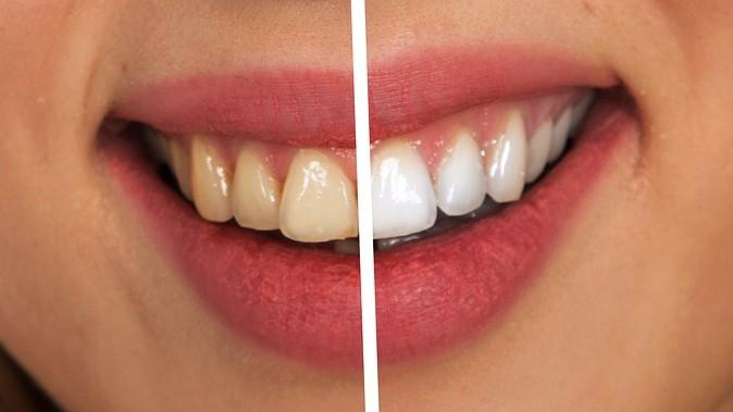 Porovnání před a po bělení zubů